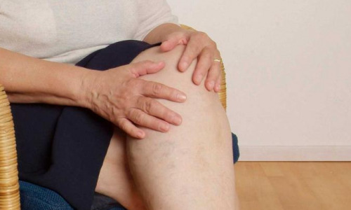 Упражнения от боли в суставах: простая гимнастика укрепит тело