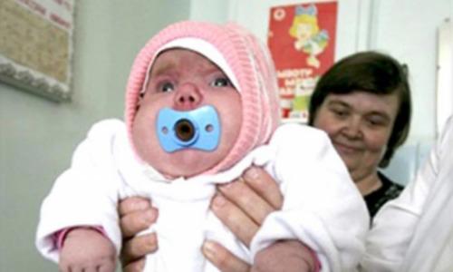Как живет и выглядит девочка, которая родилась с весом 8 кг, спустя 13 лет (фото)