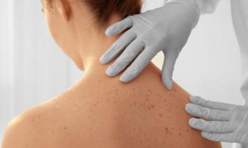 Рак кожи: онколог рассказал о скрытых признаках